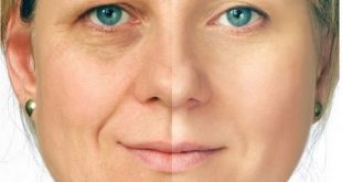 Anti Wrinkle Anti Aging Face Cream